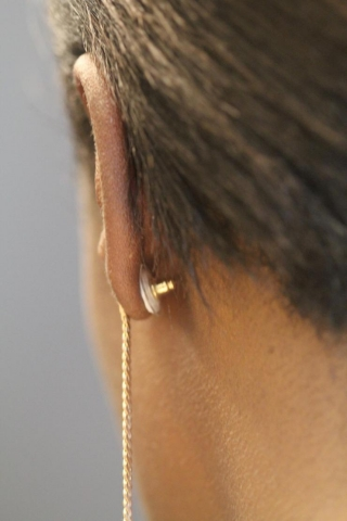 <p>A contraceptive earring patch is shown as it would be worn on a woman's ear. The white contraceptive patch can be seen attached to the earring back and adhered to the back of the ear. (Credit: Mark Prausnitz, Georgia Tech)</p>